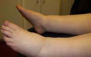 Jak odvodnit nohy